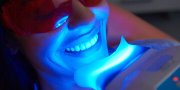 Wybielanie – nieodzownym zabiegiem, który wpływa na poprawę estetyki zębów.